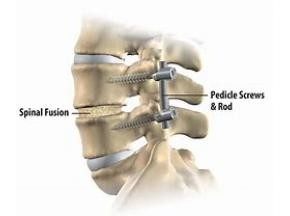 Global Spine Surgery Market Report, History and Forecast 2013-2025