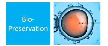 global biopreservation media market All you need to know, a new report on biopreservation market by product (equipment, lims, and media) for (bio-banking, regenerative medicine, and drug discovery) application: global industry perspective, comprehensive analysis and forecast, 2016 - 2022 in their database which includes the in-depth analysis and global forecast for the market.