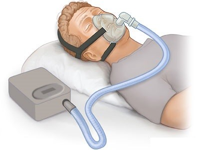 a research on sleep apnea disorder Nih funding opportunities and notices in the nih guide for grants and contracts: research on sleep and sleep disorders pa-05-046 nhlbi.