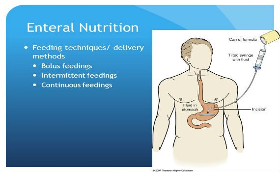 Image result for Enteral Nutrition