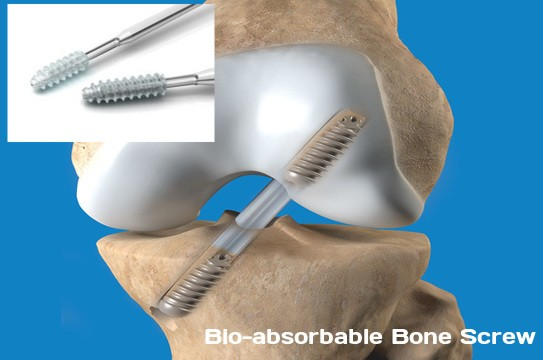Bio-absorbable Bone Screw Market